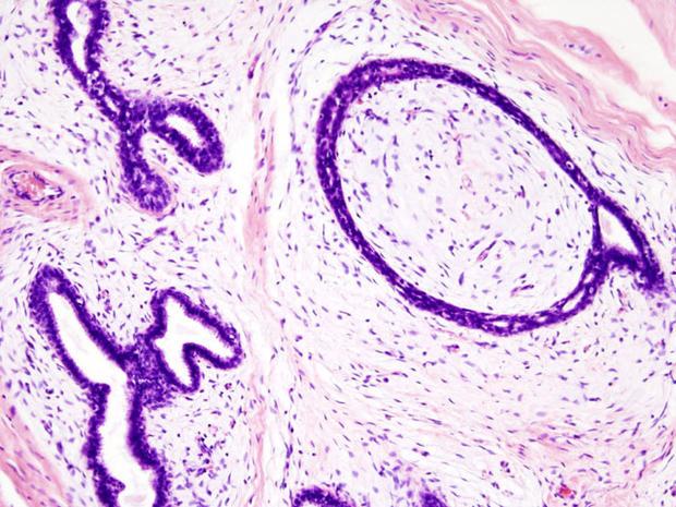 needlebiopsy.jpg