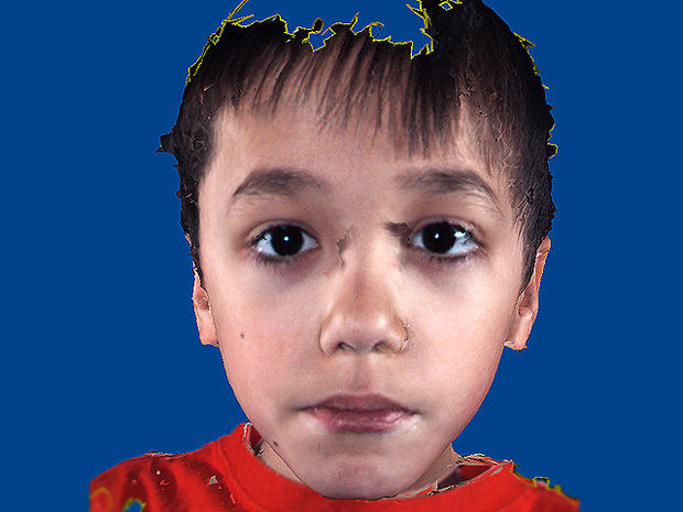 Is it autism? Facial features that show disorder - Photo 3