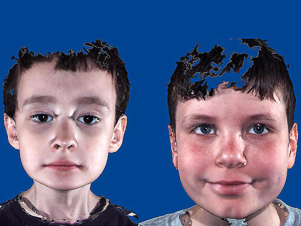 Is it autism? Facial features that show disorder