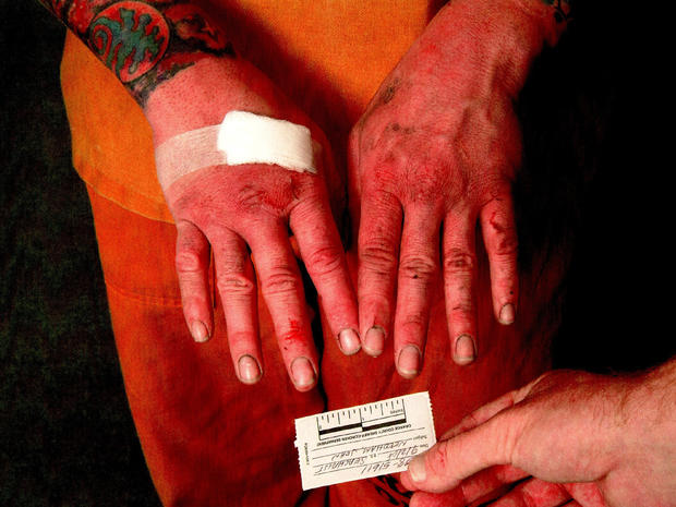 John Needham's bruised and bloody hands