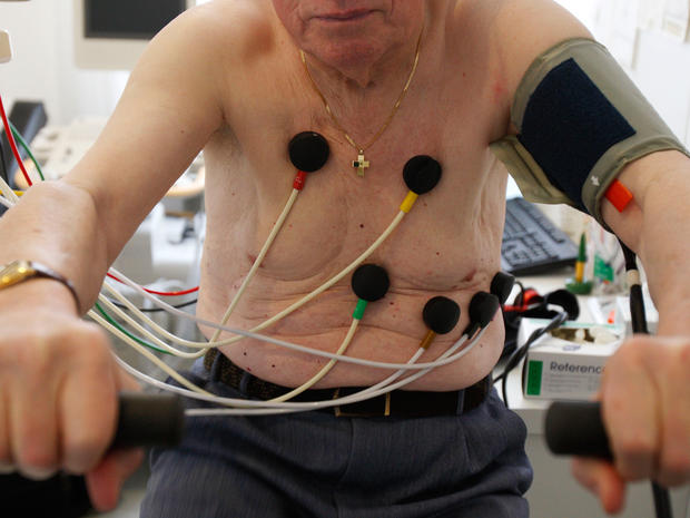 Test For Heart Attack >> Healthy people should skip EKG screening, say new U.S. Preventive Services Task Force guidelines ...