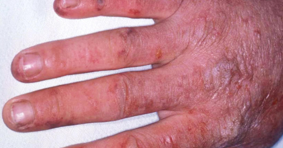 9 Uncommon Skin Conditions Cbs News