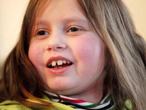 alannah shevenell, multiple organ transplant