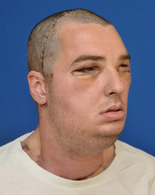 Face transplant - Amazing face transplants (GRAPHIC IMAGES