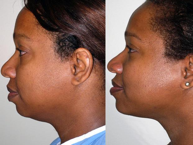 Chinplants: The latest plastic surgery craze?