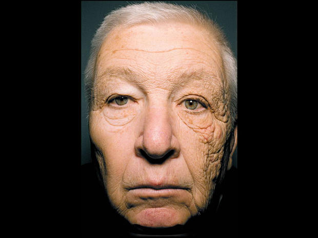 trucker's skin damaged face, uva radiation