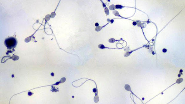 Sperm viewing magnification