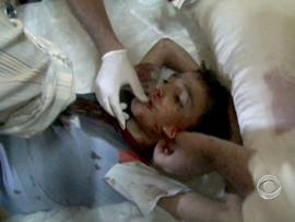 syria, wounded, boy, medical battalion, medics