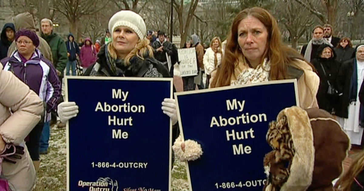 a look at the debate over partial abortion Abortion in the united states has this movement presaged the modern debate over women's partial-birth abortion is nomenclature for a procedure called.