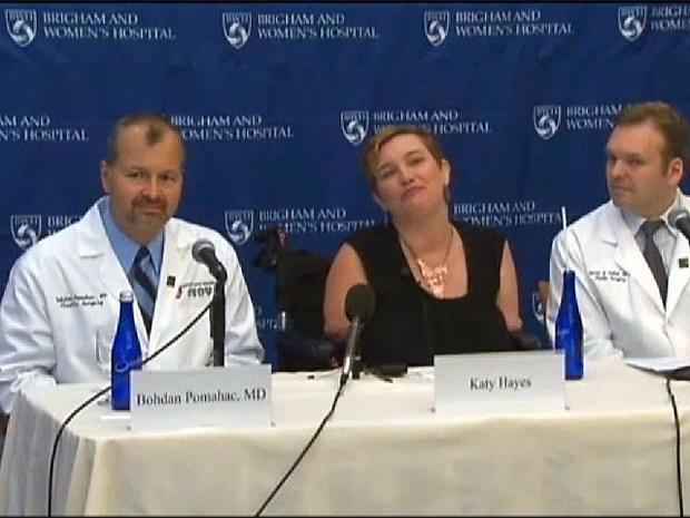 katy hates, double arm transplant, brigham and women's hospital