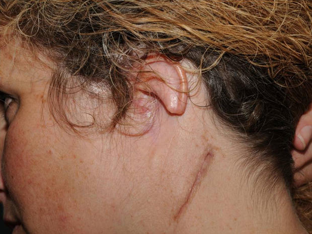 Ear reconstruction surgery (Graphic Photos)
