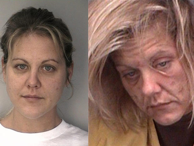 Meth's devastating effects: Before and after