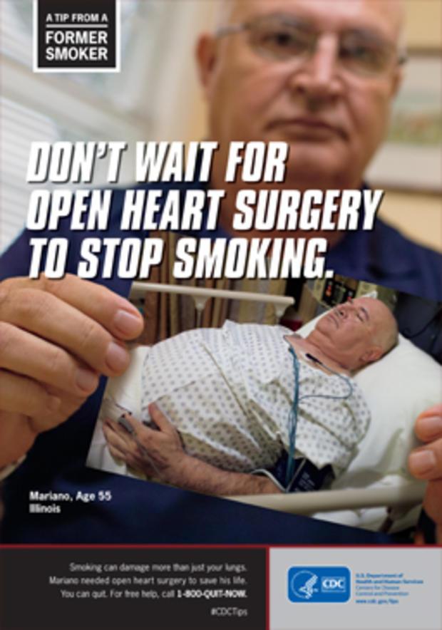 smoker4.jpg