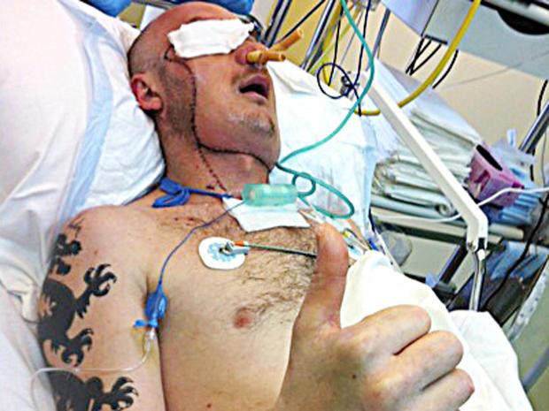 facetransplant_2.jpg