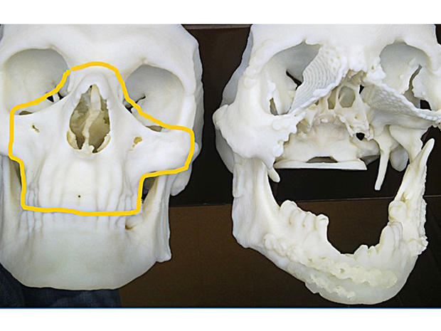 facetransplant3.jpg