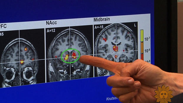 pleasure_brain_scans.jpg