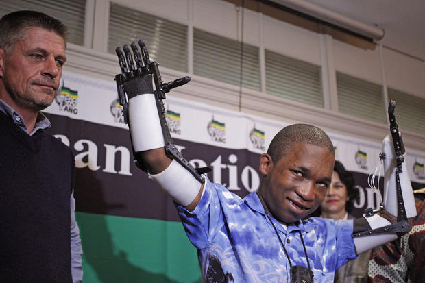 "3D printed ""Robohands"" made in South Africa"