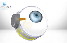 Bionic eye will soon be available to help the blind