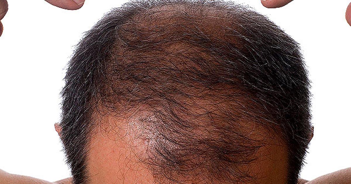 Волосы выпадают простатит клиники лечение простатита в уфе