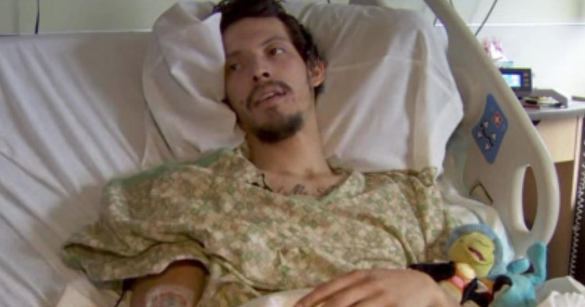 Man survives trip through wood chipper-like machine - CBS News
