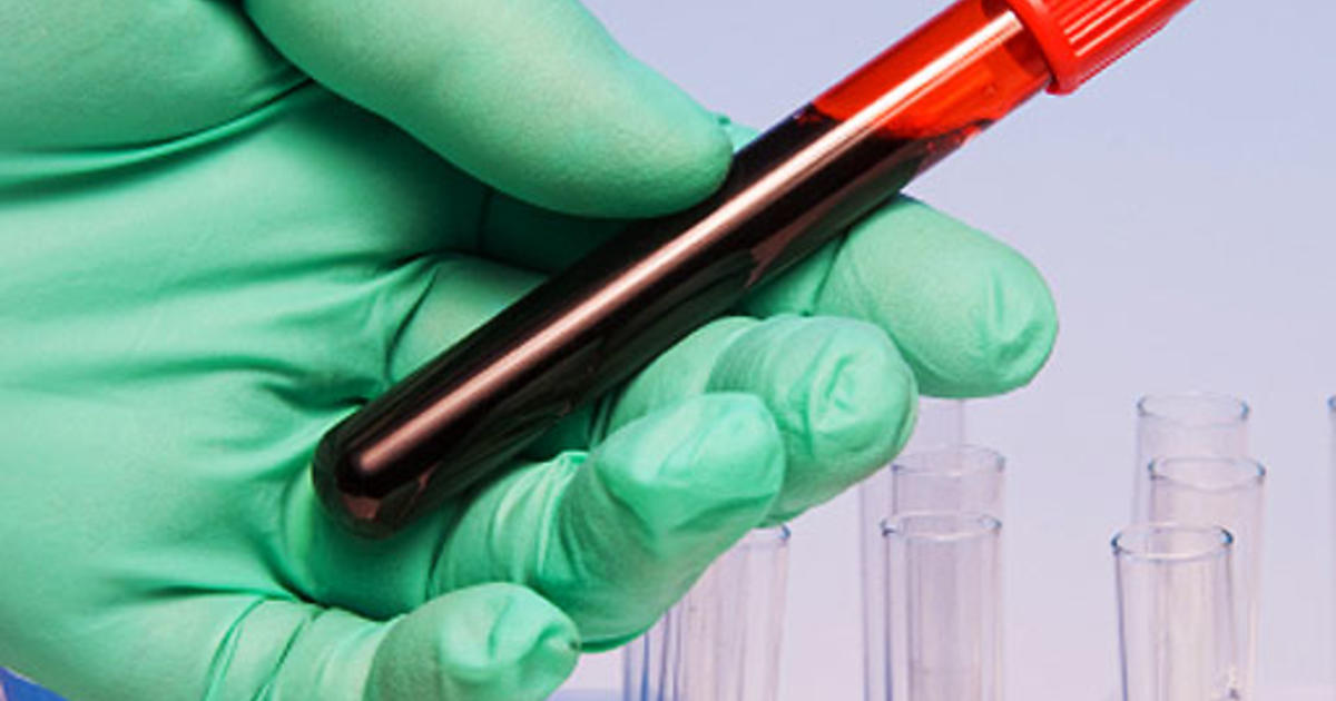 Blood Test For Ovarian Cancer Could Detect Cases Earlier Cbs News