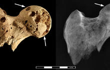 3,000-year-old skeleton riddled with cancer