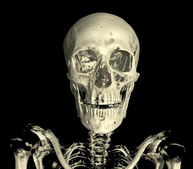 017linenman-skull-front.jpg