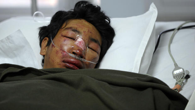 Nepalese mountaineer Dawa Tashi Sherpa, survivor of an avalanche on Mount Everest, lies in the Intensive Care Unit at Grandi International Hospital in Katmandu, Nepal, April 18, 2014.
