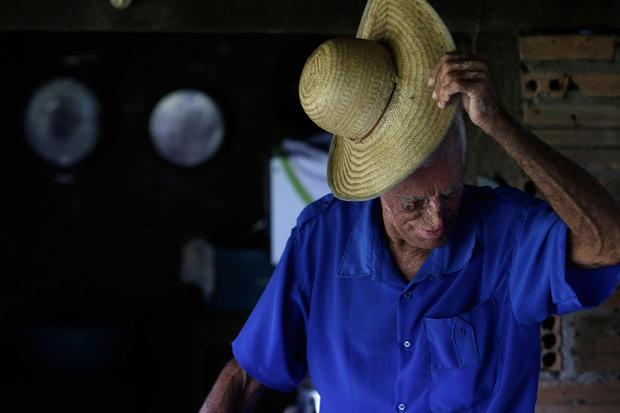 Rare disease afflicts Brazilian village
