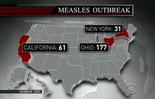 CDC: U.S. measles cases reach 20-year high