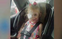 KFC investigating whether girl with scars was asked to leave