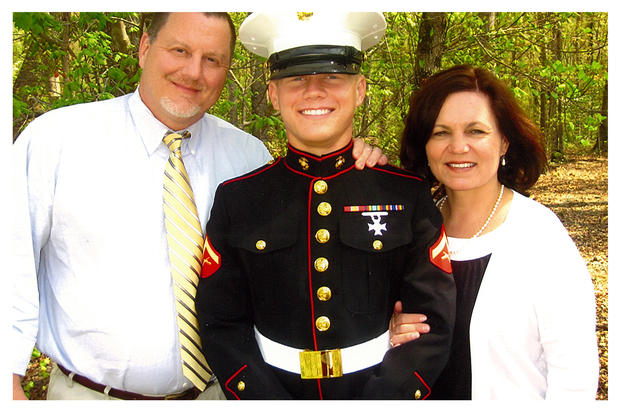 Have Kyle carpenter before and after surgery opinion