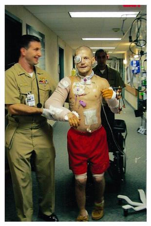 Join told Kyle carpenter before and after surgery you tell