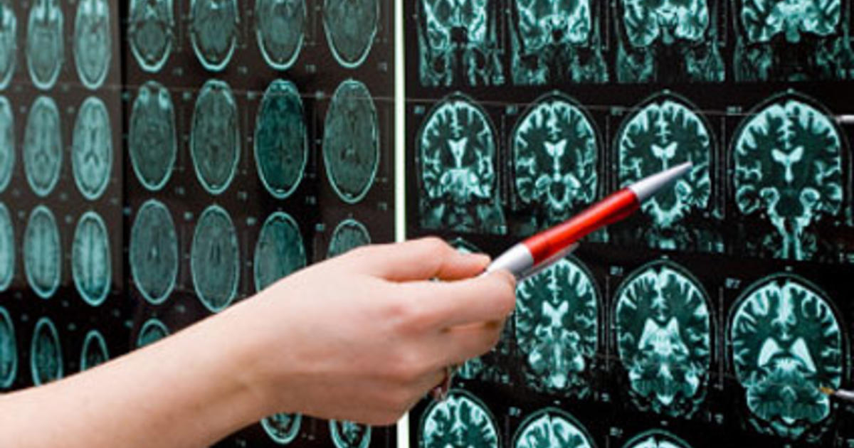 How smart are you? Differences in brain activity might hold clue