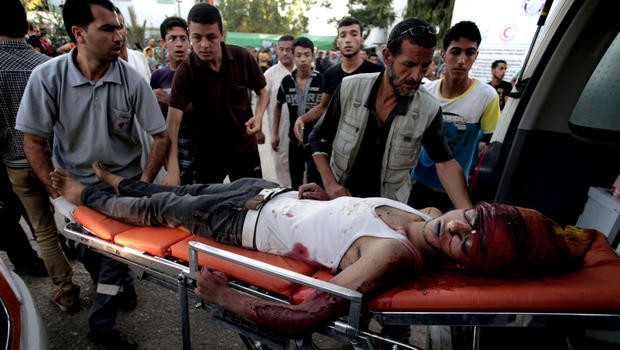palestinians-wounded.jpg