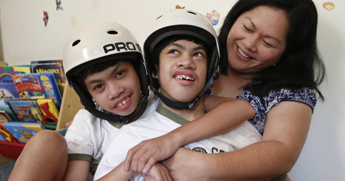 Twin Study Raises Doubts About >> Once Conjoined Twins Clarence And Carl Aguirre Celebrate 10 Years Of