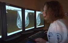Experts plead for help treating advanced breast cancer
