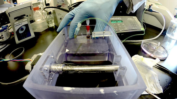 Photos: 3D printing and the future of burn treatment