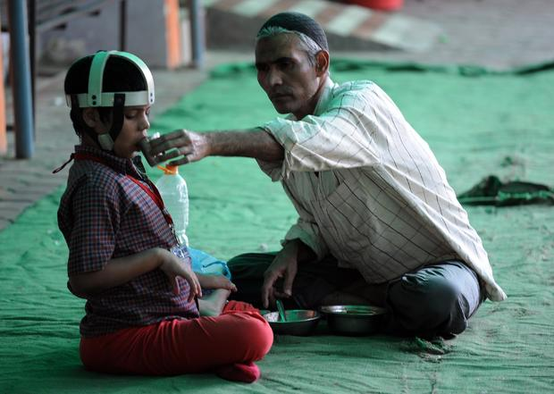 An Indian resident feeds Umar, a second-generation victim of the Bhopal gas disaster, at the Chingari Trust, an organization working to help the second-generation victims of the disaster, near the Union Carbide factory in Bhopal Nov. 30, 2014.