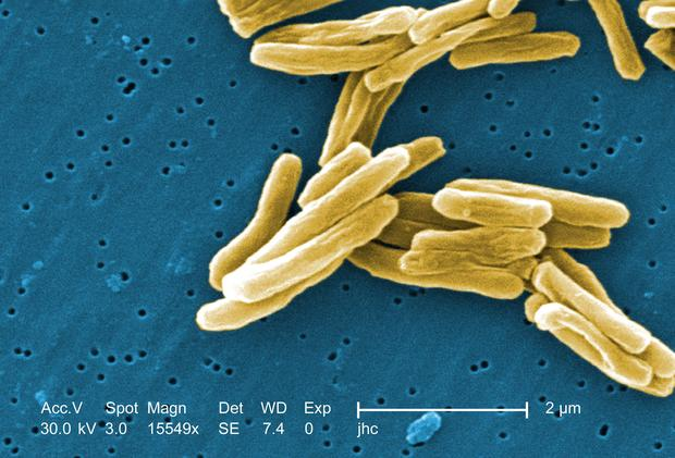 15 superbugs and other scary diseases