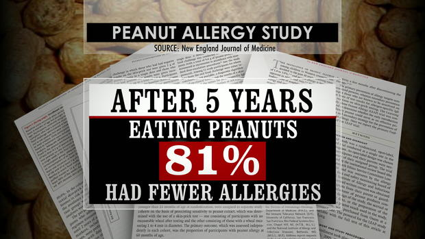 lapook-peanut-allergies-transferframe1514.jpg
