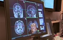 "Clinical trial hailed as ""game changer"" for Alzheimer's"