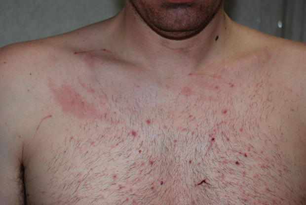 Scratches on Tom Fallis' chest