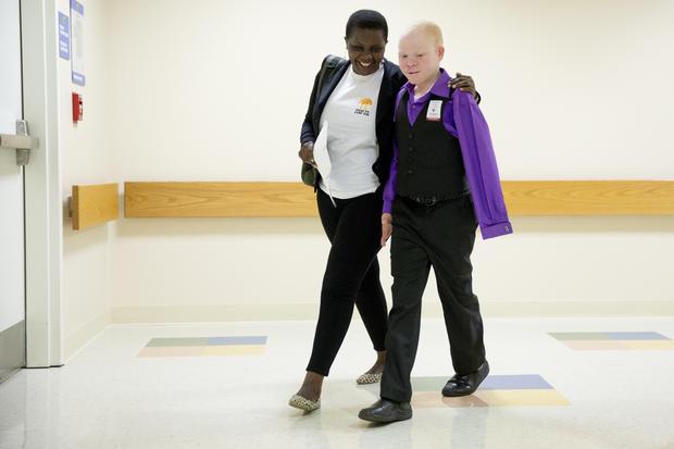 New limbs, new hope for Africa's hunted albino children