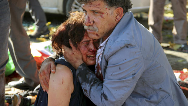 An injured man hugs an injured woman after an explosion during a peace march in Ankara, Turkey, Oct. 10, 2015.