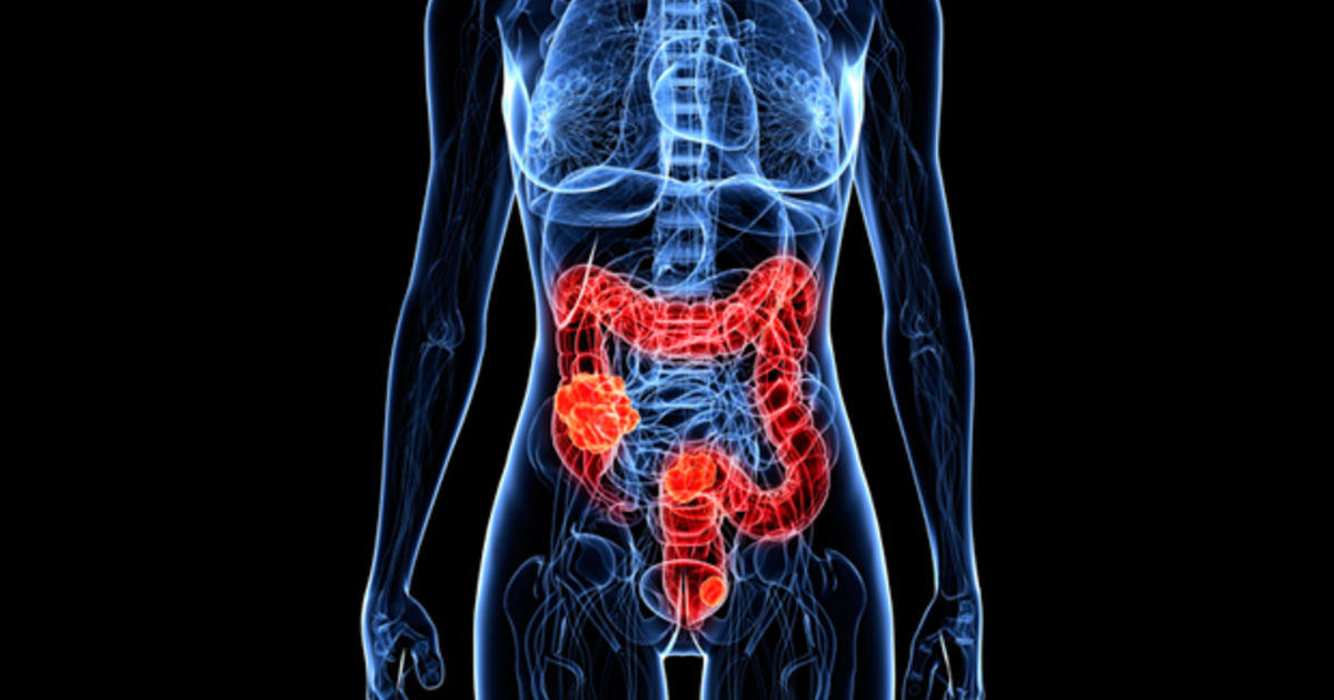 Time To Drop The No Eating Rule Before A Colonoscopy Cbs News