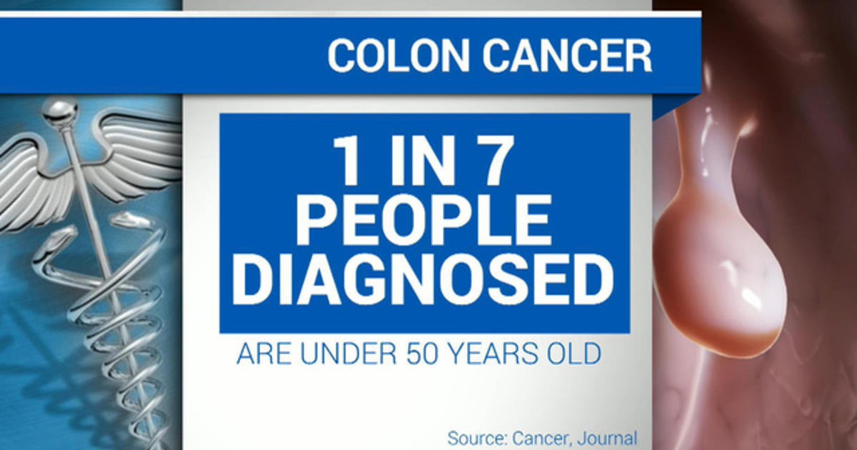 Colon Cancer Rates Rising In People Under 50 Cbs News