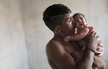 Zika virus takes heartbreaking toll