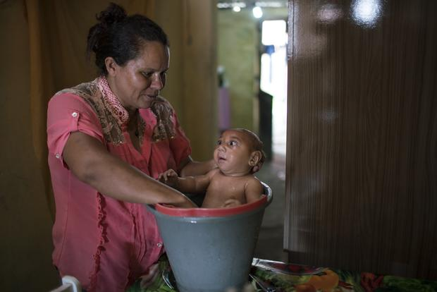 20 alarming facts about the Zika virus