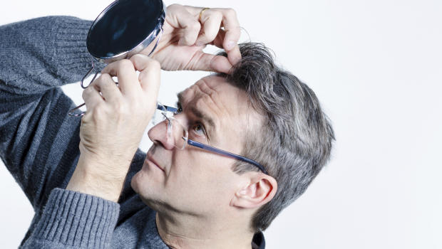 Causes of pre mature gray hair | Aaj News